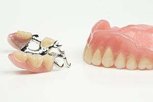 総入れ歯と部分入れ歯