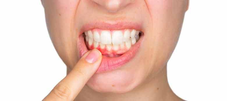 歯周病と歯肉炎とは